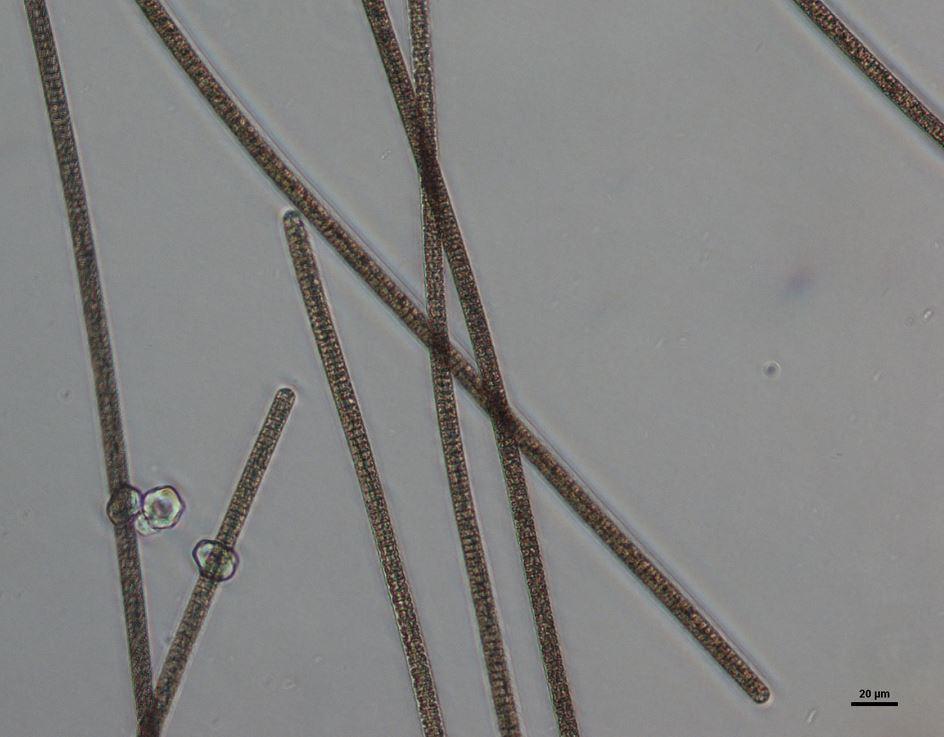 Planktothrix rubescens Arhel Bled 2015